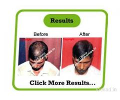 Alopecia universalis in india - Ayurveda hair care