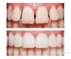 Porcelain Veneers Treatment Cost in Delhi